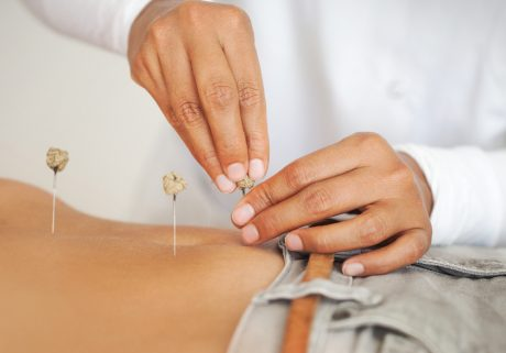 Acupuncture CEU Package