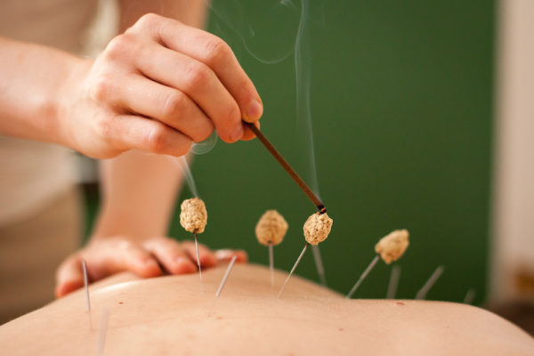 Acupuncture Continuing Education Moxibustion
