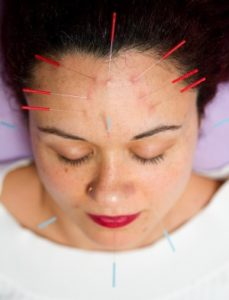 Acupuncture Acne