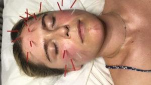 Acupuncture Chelsea Burns