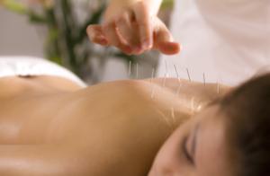 Acupuncture Fibromyalgia