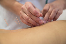 Acupuncture for Psoriasis