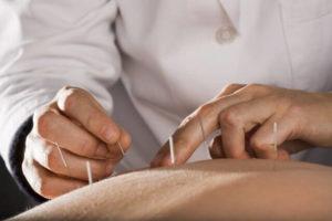 Acupuncture Psoriasis