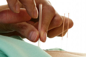Acupuncture Skin Disorders